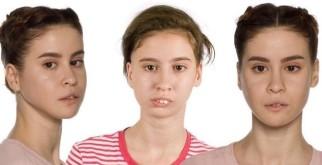 Аня Калашник (Хахадетка) из Тик-Тока: фото до и после операции, биография