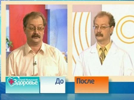 Андрей Продеус до и после похудения