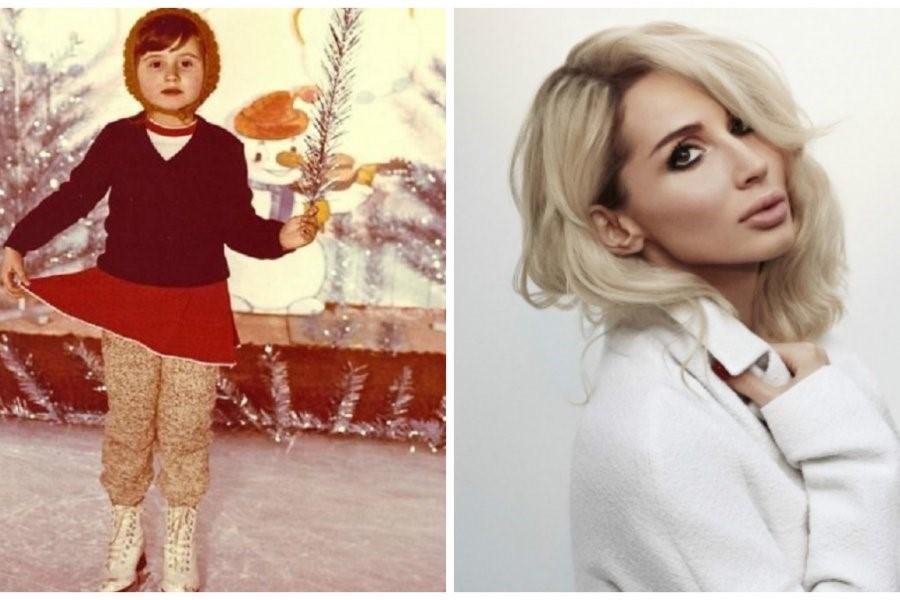 Светлана Лобода рассказала, как лишилась зубов в детстве