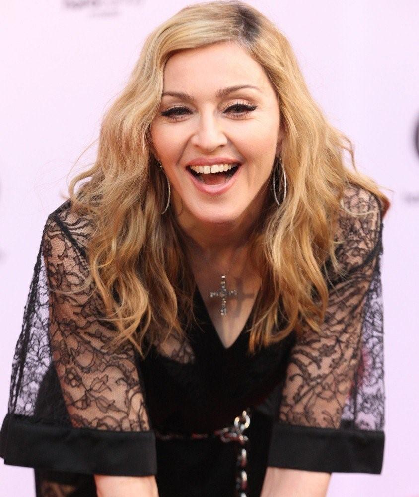 Кривые зубы: звезды с не голливудской улыбкой